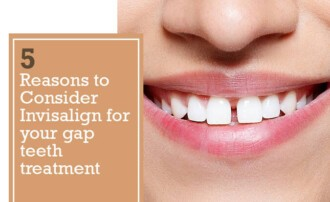 5_reasons_to_consider_invisalign_for_your_gap_teeth_treatment