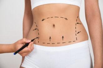 Tampa Liposuction