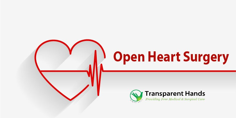 Simple Guidance for You in Open Heart Surgery