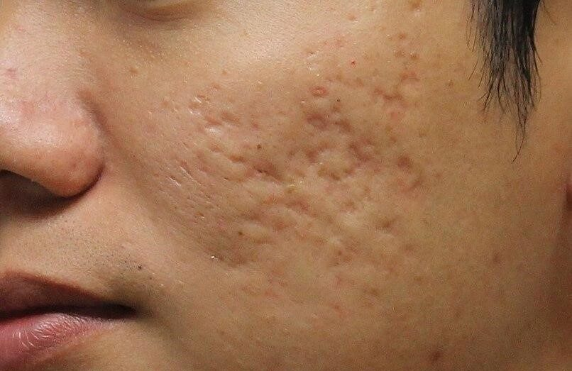 Types of acne scars and its treatment