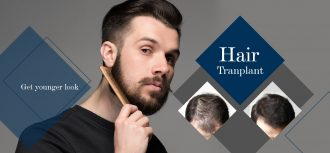 How Successful Is A Hair Transplant?