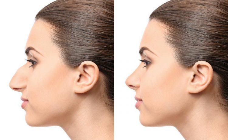 The Course and Procedure of Rhinoplasty in Turkey