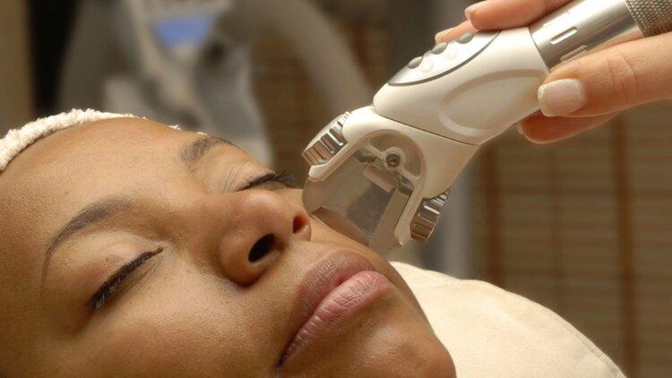 The Definitive Top 5 Melasma Treatment Options